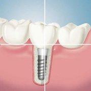 种植牙后会影响箍牙吗