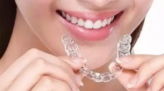 牙齿矫正建议优先考虑隐形矫正