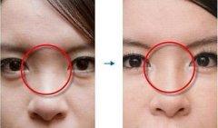 隆鼻比较好的五种方式