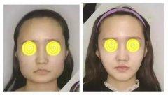 面部吸脂能瘦脸吗?吸脂瘦脸效果怎么样?