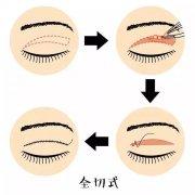 做双眼皮都有哪些手术方式