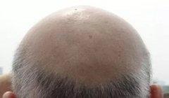 毛发种植的价格是多少高不高呢?植发有用吗?