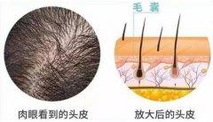 头发种植一般多少钱