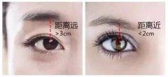 都说割双眼皮好看,但是双眼皮割多宽更好看?