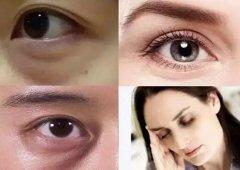 隐线美祛眼袋好不好?可以维持多久?