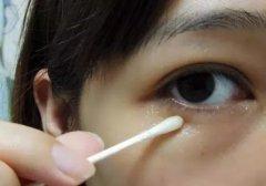 祛眼袋方法!去除常年眼袋,不反弹!