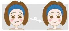 抽脂去眼袋是否会有后遗症吗