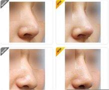 v8线雕鼻部整形的价格是多少?恢复期间要注意什么?