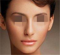 假体垫鼻子鼻整形手术专家讲解假体垫鼻让你的脸部