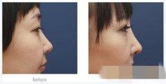 假体隆鼻的假体也要手术取出吗
