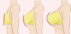 做自体脂肪注射隆胸整形手术需要价格是怎样的呢